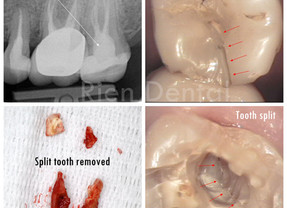RCT - No crown - Tooth split - Extraction.