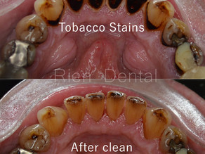 Tobacco Stains On Teeth