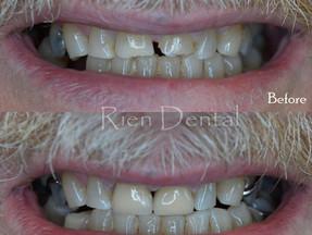 Crowns for teeth grinding
