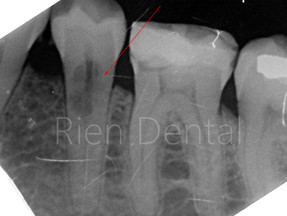 External Root Resorption.