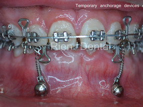 Temporary anchorage devices - TADs