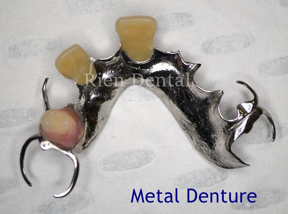 metal, cobalt chrome denture