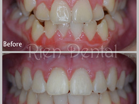 Fix crooked teeth and crossbite with braces.