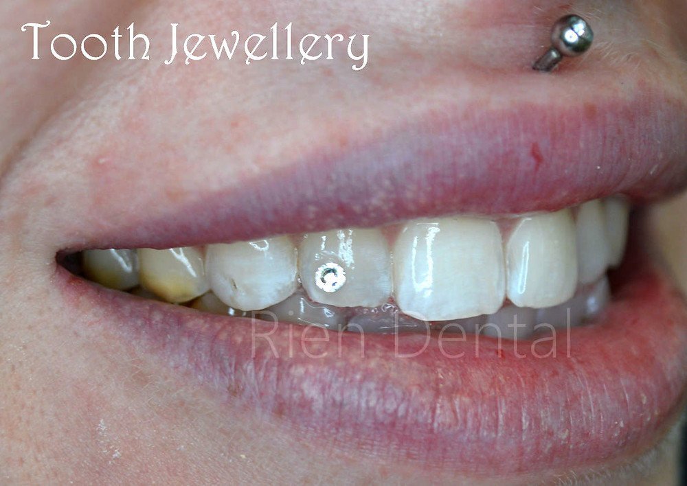 Tooth jewellery and gems