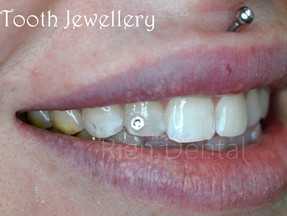 Shiny Smiles - Tooth Jewellery and Gems.