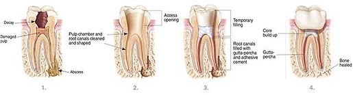 root canal treatment, RCT