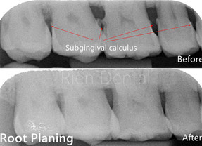 Scaling and root planing - Deep cleaning.