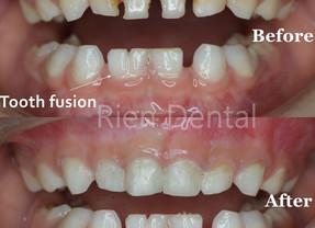 Dental care for baby teeth.