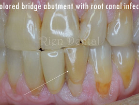 A different approach to root canal treatment.