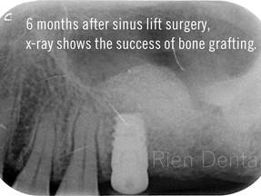 Immediate implant placement after sinus lift. - Part 2. Restoration