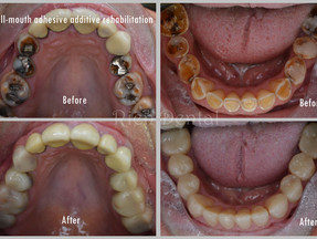 Full-mouth rehabilitation of the worn dentition.