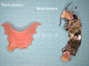 Metal vs plastic partial dentures.