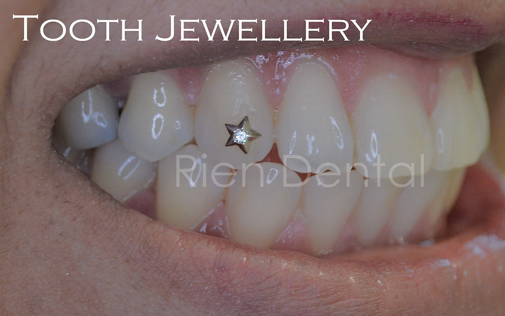 Tooth Jewellery, tooth gem