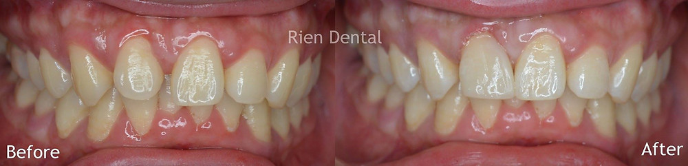 Composite bonding, close gap between teeth
