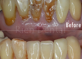 Crowns - restore teeth aesthetically and functionally.