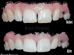 Direct Veneers - Composite Veneers