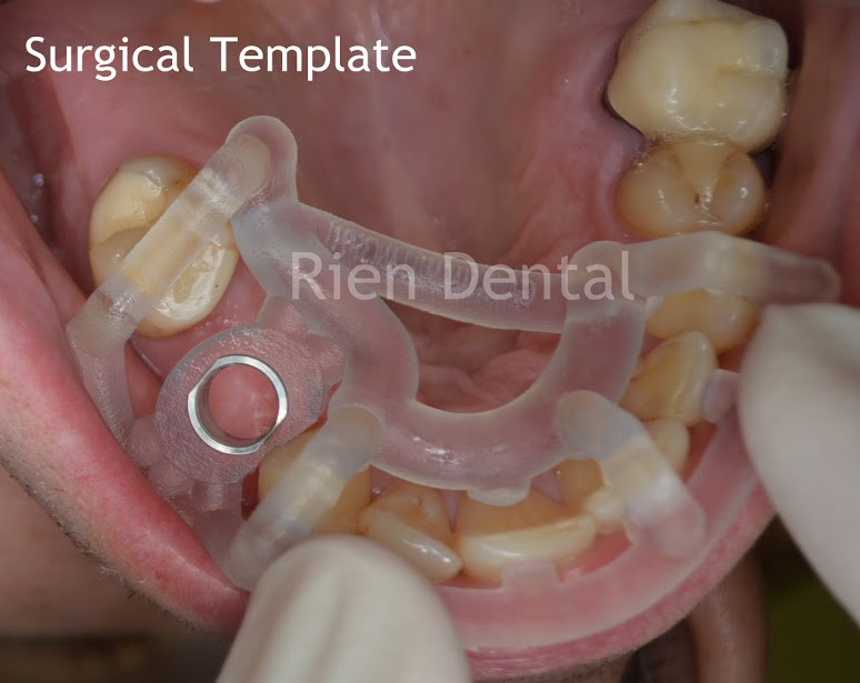3D printed dental implant surgery template