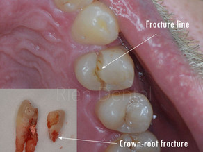 Do I really need a crown after a root canal?