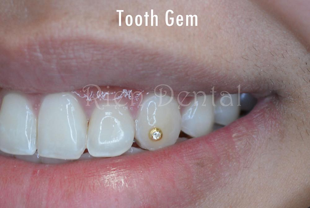 tooth gem