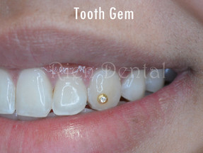 Tooth jewellery - Tooth gem.