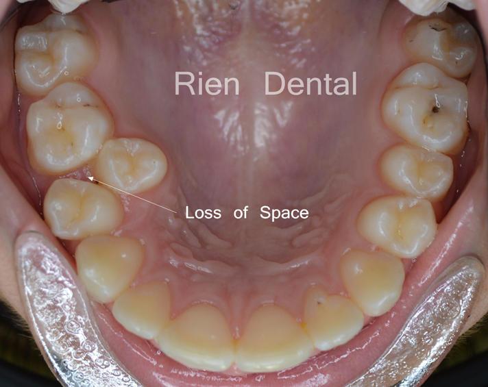 premature loss of deciduous teeth