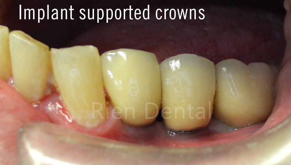 Implant supported crowns