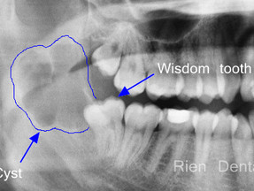 It's wise to have wisdom teeth checked.
