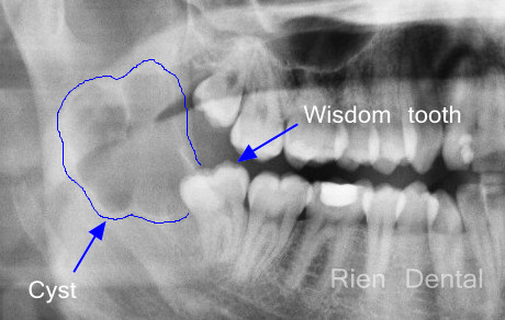 Impacted wisdom tooth with a cyst