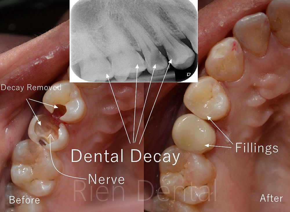 tooth decays