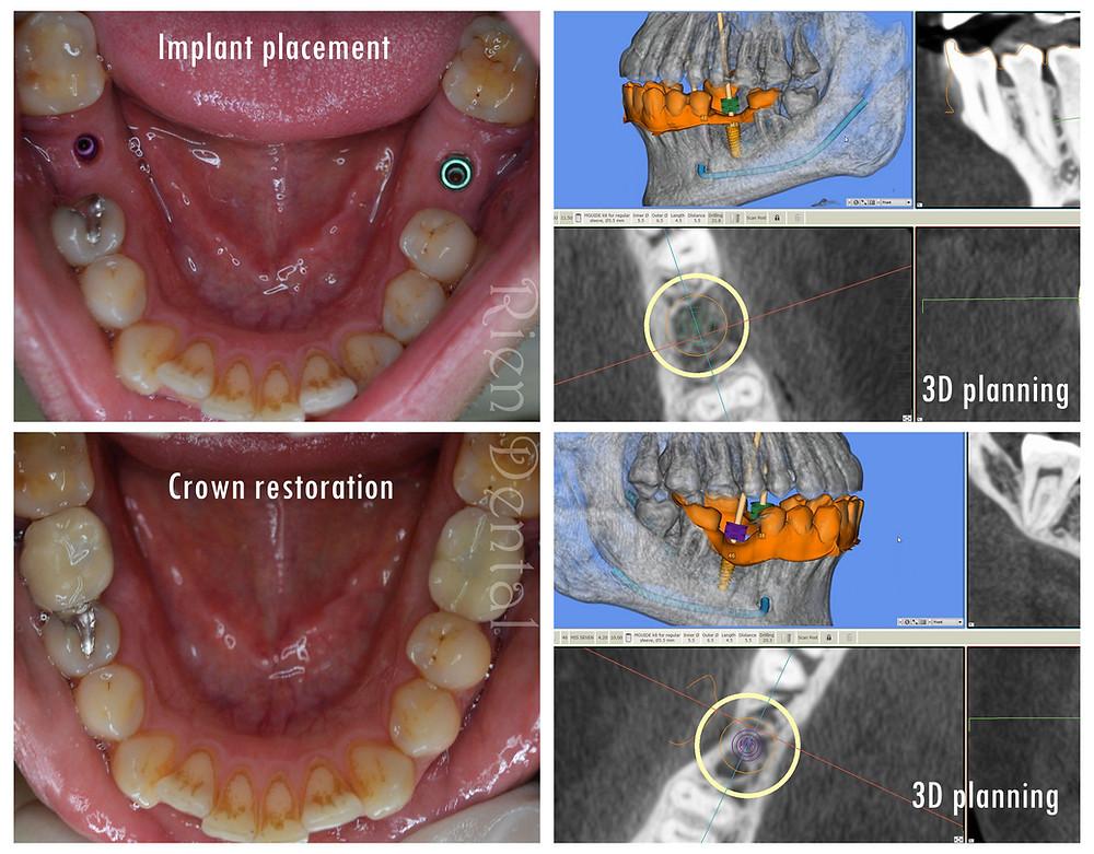 2 dental implants