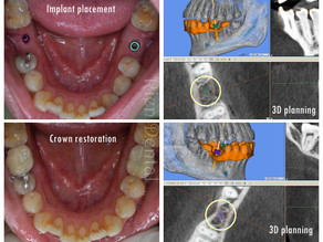 2 implants to replace 2 missing lower molars