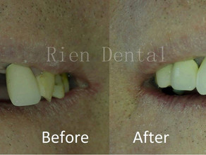 Single implant to replace missing anterior tooth.