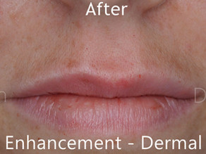 Lip Enhancement - Dermal Filler