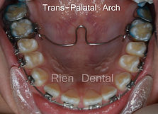 Trans-Palatal Arch, TPA, orthodontics