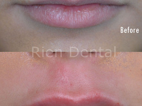 Lip enhancement - enhance your lip size & appearance