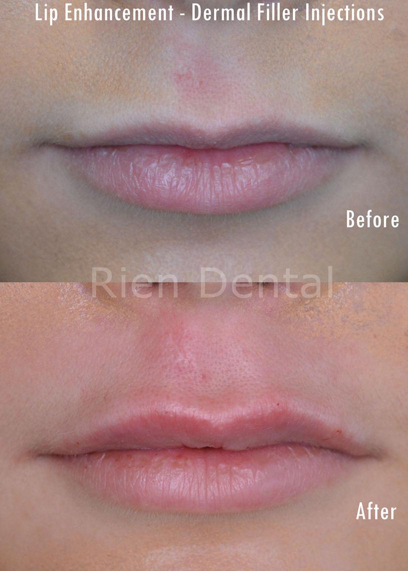 Lip enchancement and dermal fillers
