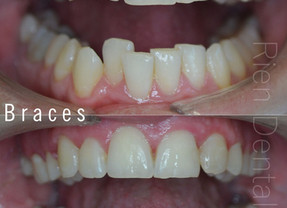 Orthodontic treatment - braces.