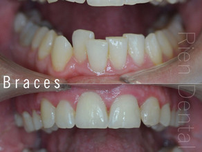 Orthodontic treatment - braces.