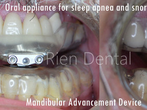 Oral appliance for the treatment of sleep apnea and snoring