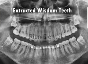 Wisdom teeth extraction - Is it a wise decision?