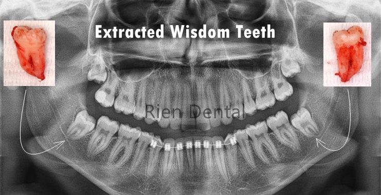 Impacted wisdom teeth extraction