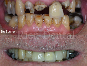 Replace missing teeth with dentures.