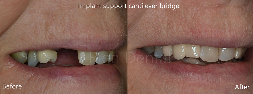 implant supported cantilever bridge