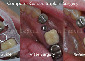 Single dental implant replacing a missing tooth.