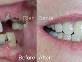 Dentures - An affordable option