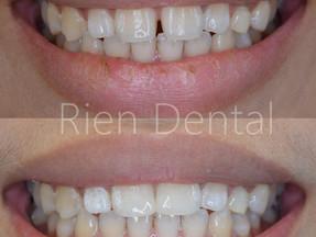 Teeth Bonding for Gaps Between Teeth