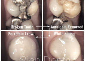How to fix a broken tooth.