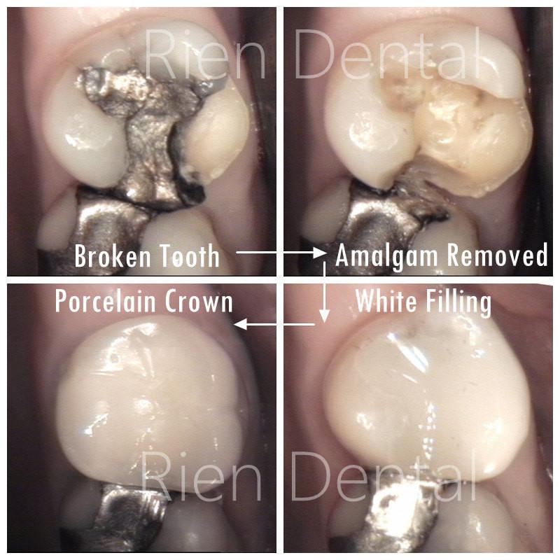 Broken tooth, Crown