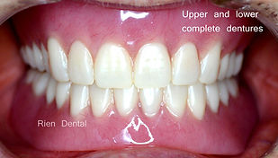 Upper and lower full complete dentures