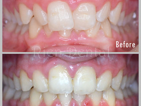 Straighten crooked teeth with braces
